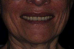 2 Smile After Treatment middle right