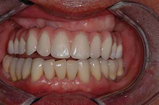 After Treatment Occlussal YBWTues
