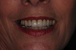 After Treatment Smile GCFinal