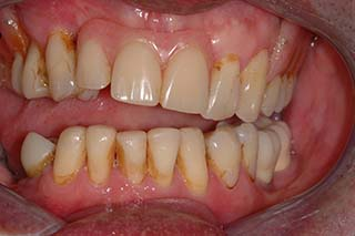 Before Treatment Occlussal YBW Final