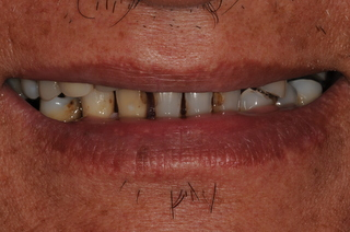 Before Treatment Smile CC(1)
