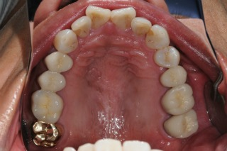 After Replacing Amalgam with Porcelain