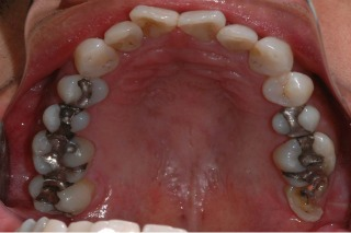 Before Replacing Amalgam with Porcelain