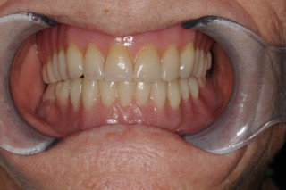 Denture Stabilization with 2 x Implants (D)