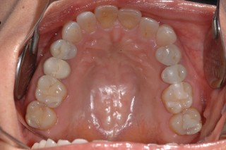 Porcelain Overlay and Composite Restorations