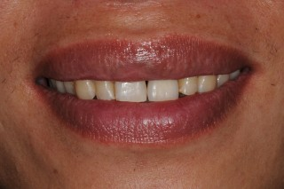 Single Implant Discoloured Tooth - After