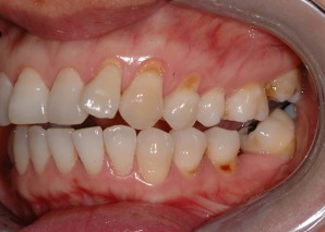 Toothbrush Abrasion (A) Before