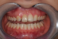 before diastema space closure