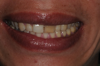 discoloured tooth before