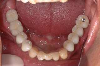 after implant bridge